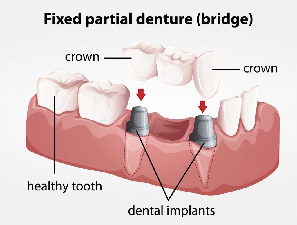 Fixed partial denture bridge