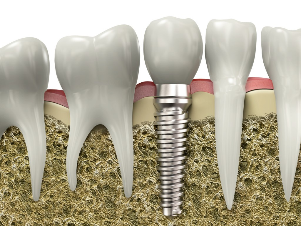 Dental implant edmonton